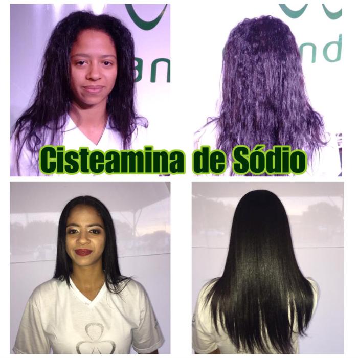 Cisteamina de Sódio Grandha. Jornada Técnica Grandha Campinas 2017.