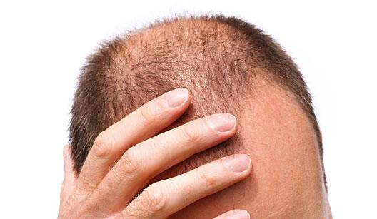 Calvície, caso de alopecia androgenética que deve ser tratado com terapia capilar, Urbano Spa Grandha.