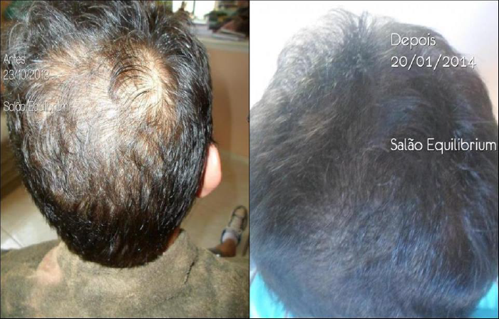 O Urbano Spa age na desobstrução dos poros. Na imagem, um cabelo com 3 meses de tratamento.