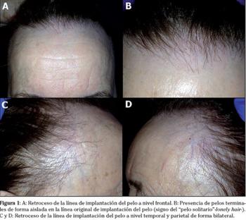 Imagens extraídas no artigo de Sancho et al., 2016, mostrando o  retrocesso da linha de implantação frontal, com pelos isolados; bem como o retrocesso nas regiões parietais, em ambos os lados.