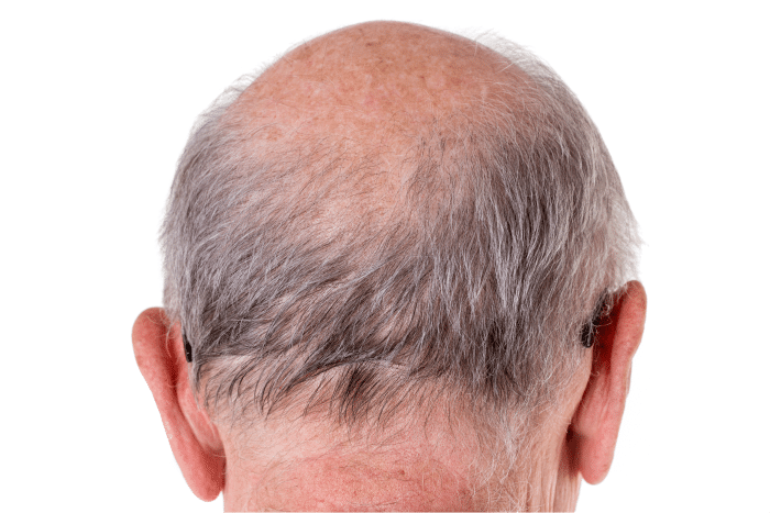 Calvície tem jeito: anageline no tratamento de alopecia androgenética. Por Thaís Magalhães. Blog Grandha. Urbano Spa Blue.