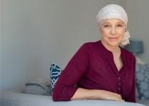 Mulher fazendo terapia para alopecia androgenética feminina.