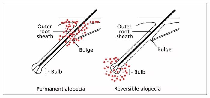 Ilustração da diferença entre alopecia permanente e alopecia reversível.
