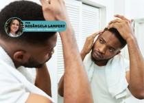 Alopecia e Biomedicina: papel do biomédico na prevenção e tratamento.
