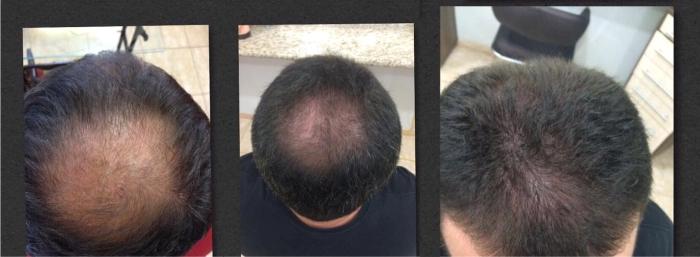 Eduardo Motta é terapeuta capilar, especialista no tratamento de calvície, alopecia areata, alopecia androgenética e outros tipos de alopecia. Seu trabalho com o Urbano Spa, da Grandha, é destaque em Ribeirão Preto.