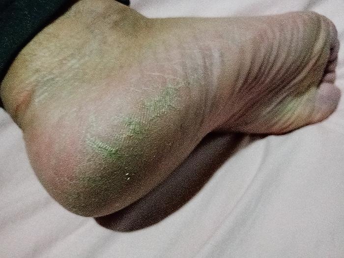 Pé rachado e desidratado antes de aplicação de escalda-pés.