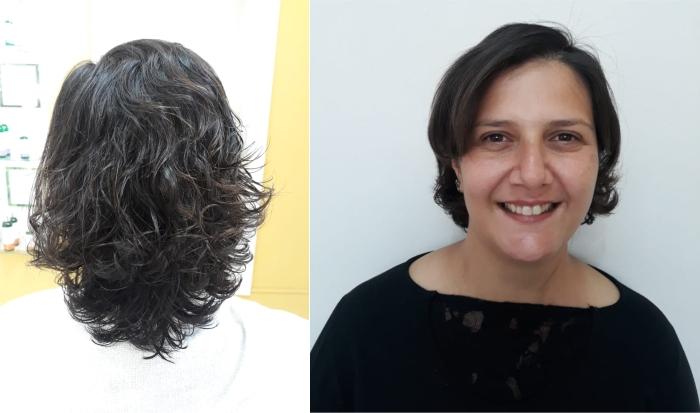 Mulher após tratamento para alopecia areata: queda capilar por traumas e questões emocionais.