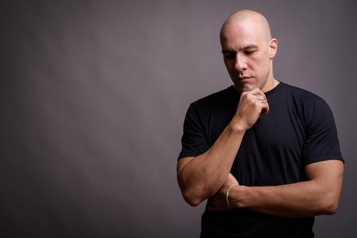 Estudo aponta correlação de calvície masculina (alopecia androgenética) com casos graves de Covid-19.
