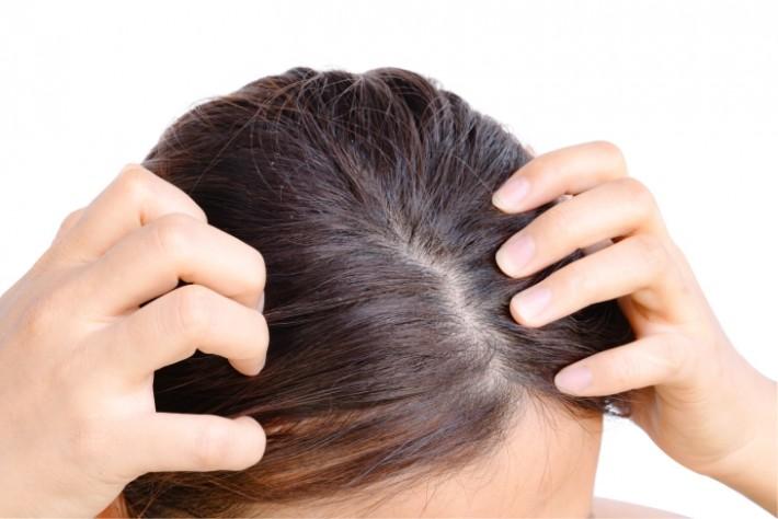 Dermatite seborreica tem maior incidência no tempo frio.